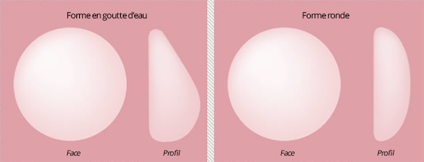 conseils-augmentation-mammaire